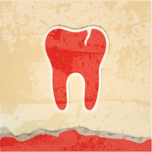 tooth with a crack retro poster
